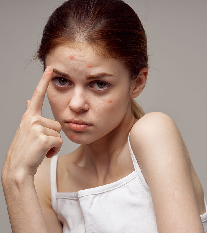 How to Get Rid of Pimple Marks?