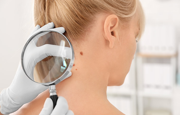 The Danger Of Skin Cancer
