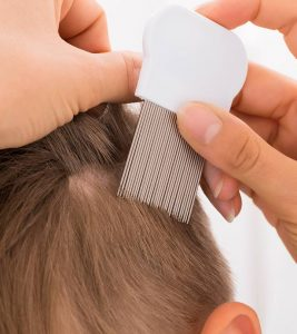 8 Best Lice And Nit Combs To Buy In 2020