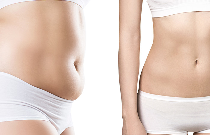 The Benefits Of Fat Freezing (Cryolipolysis) Machine </h2> <div id=