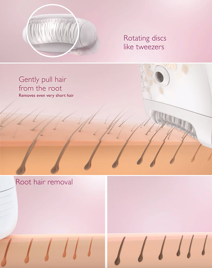 How Does An Epilator Work