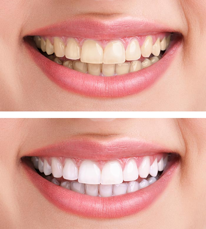 How To Get Whiter Teeth Quickly