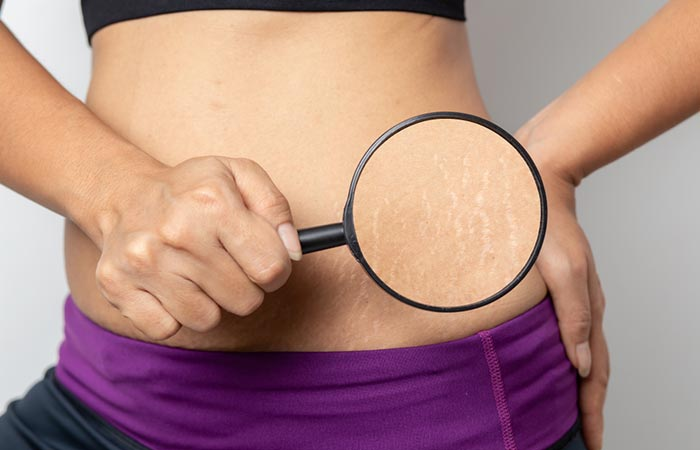 Lemon Honey Helps Get Rid Of Stretch Marks