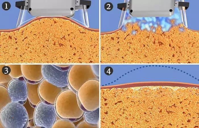 What Does A Fat Freezer (Cryolipolysis) Machine Do