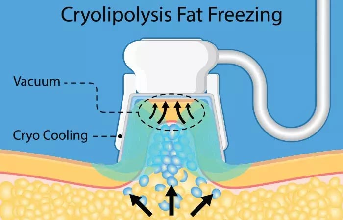 What Is Fat Freezing