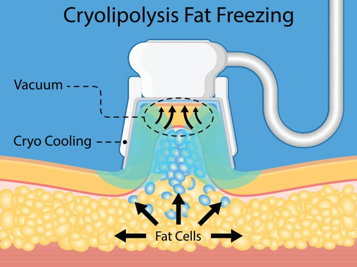 What Is Fat Freezing </h2> <div id=