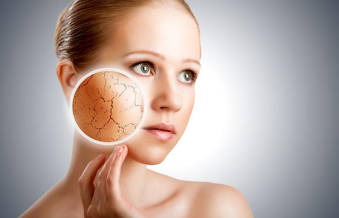 24.-Treatment-Of-Dry-Skin