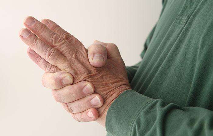 6. Multiple sclerosis