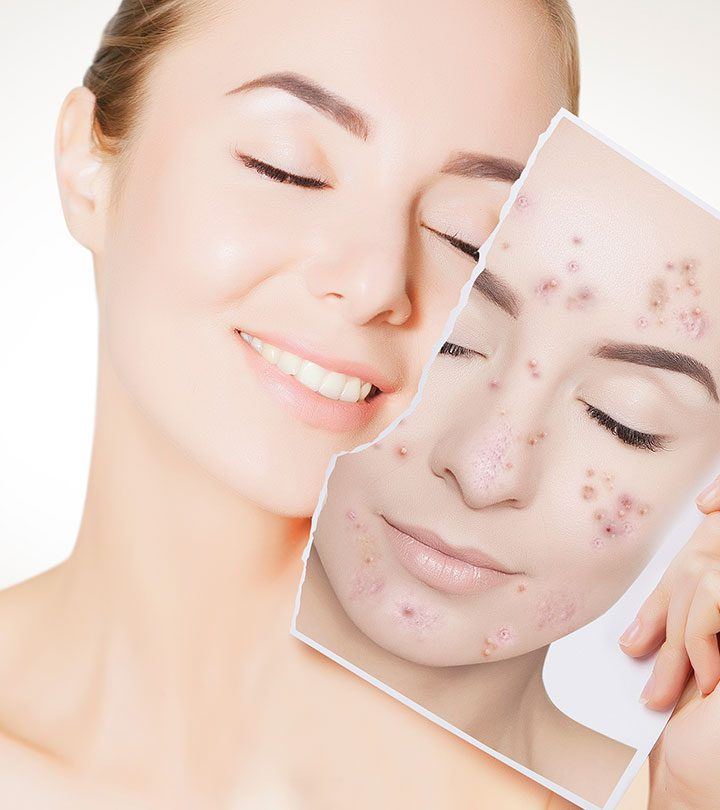 Best Anti Acne and Anti Pimple Creams in Hindi