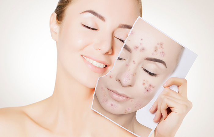 Besan will Get rid of acne in hindi