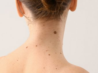 Home Remedies For Mole Removal in Hindi