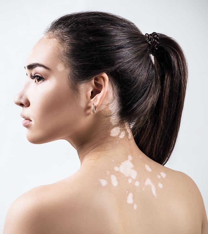White Spots (Vitiligo) Home Remedies in Hindi