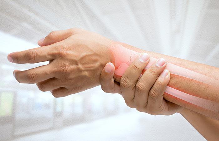 10. रुमेटाइट अर्थराइटिस (Rheumatoid Arthritis)