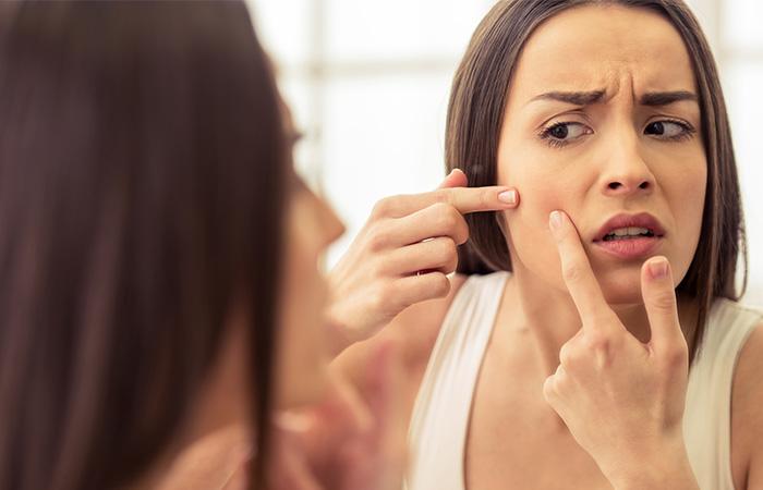 Acne Glycerin Benefits