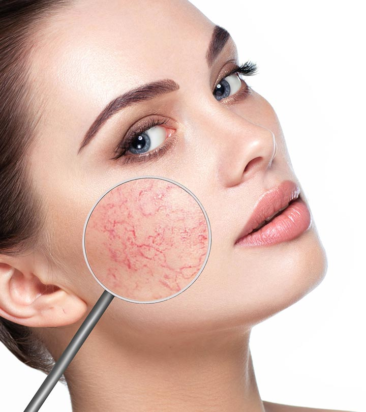 Broken Capillaries On The Face: Causes And How To Treat Them