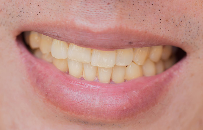 Causes of Yellow Teeth in Hindi