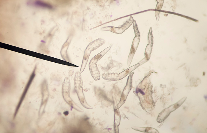 Diagnosing And Treating Face Mites
