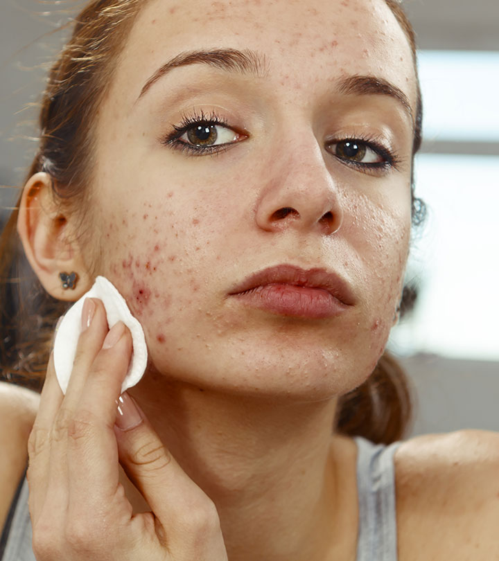 Face Mites: Causes And How To Treat Them