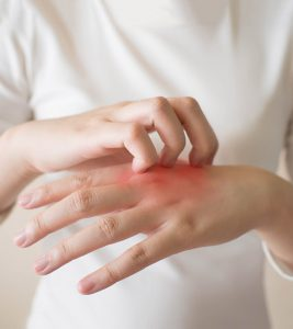 Fungal Infection Symptoms and Home Remedies in Hindi