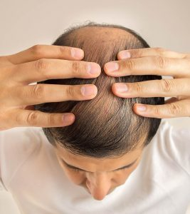 Home Remedies for Baldness in Hindi