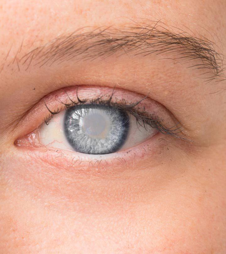 मोतियाबिंद के कारण, लक्षण और घरेलू इलाज – Home Remedies for Cataracts in Hindi