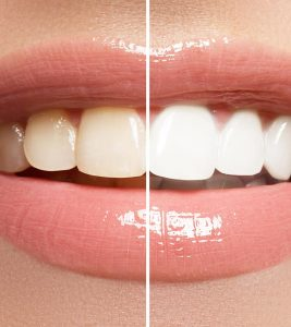 Home Remedies for Teeth Whitening in Hindi