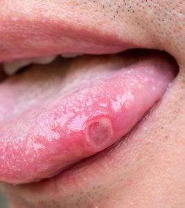 Home Remedies for Tongue Ulcer in Hindi