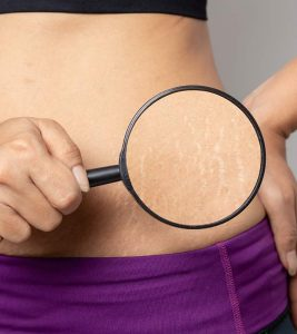 How To Remove Stretch Marks in Hindi