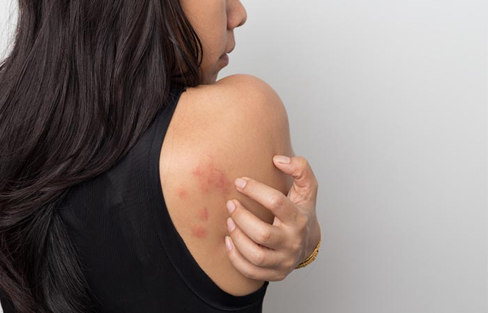 Keto Rash Signs And Symptoms