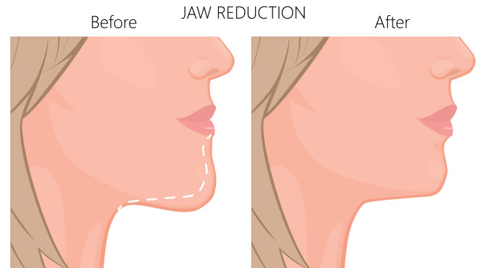 What Is V-Line Jaw Surgery