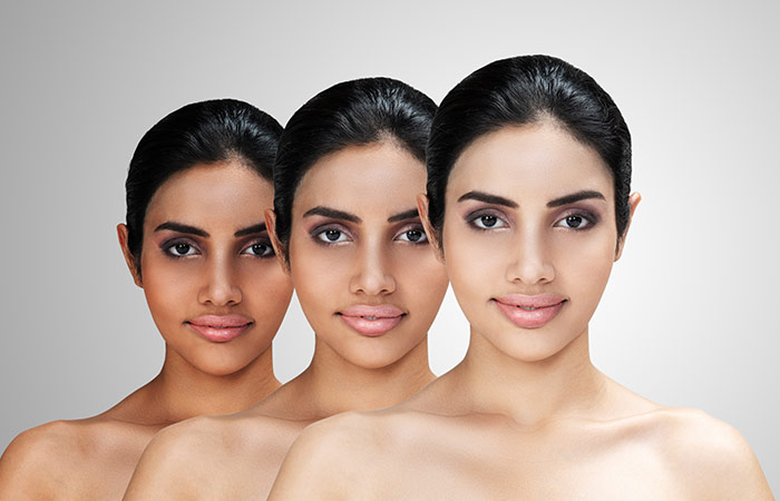 Whitening of skin color