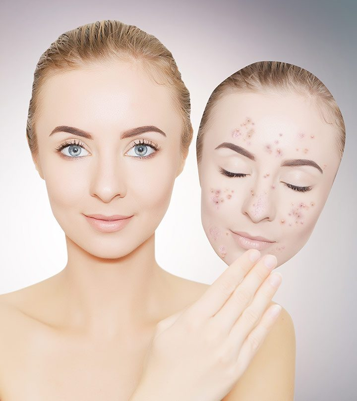 Creams For Dark Spots in hindi