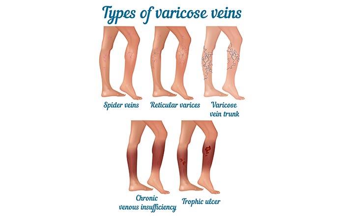 Types of Varicose Veins in Hindi (2)