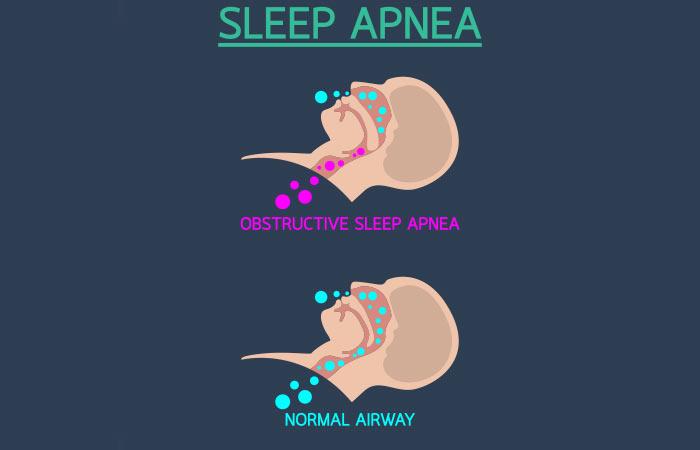 What is Sleep Apnea in Hindi