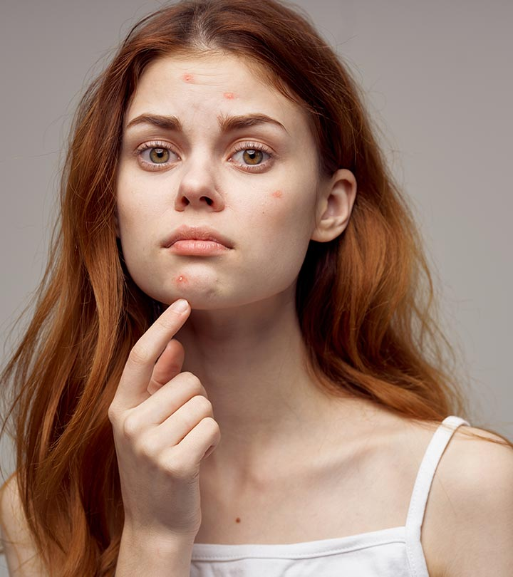 Antibiotics For Acne – Everything You Need To Know About Them
