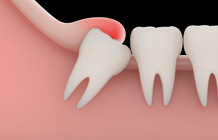 Causes of Wisdom Tooth Pain in Hindi