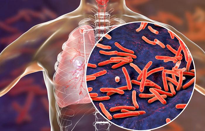 Tuberculosis disease