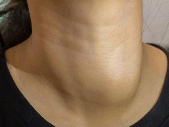 Goiter Causes, Symptoms and Treatment in Hindi