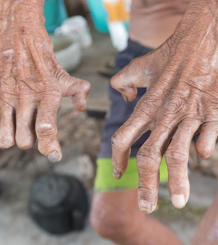 Leprosy Causes, Symptoms and Treatment in Hindi