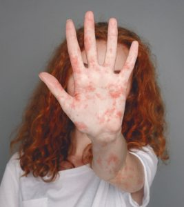 Measles Symptoms and Treatment in Hindi