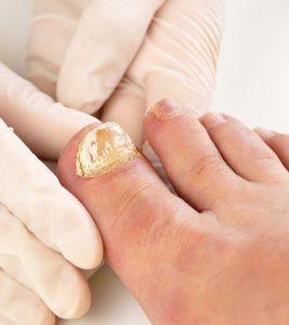 Nail Fungus Symptoms and Home Remedies in Hindi