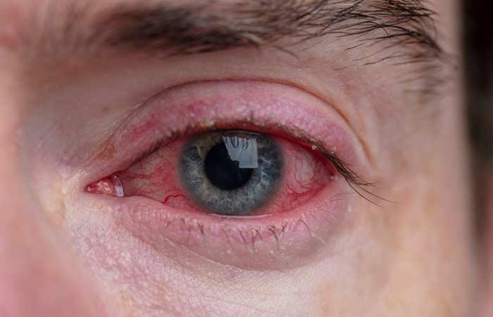 Sunflower oil benefits for cataract