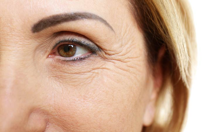 What Are The Different Types Of Wrinkles