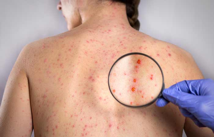 What is Measles in Hindi