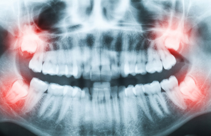 What is Wisdom Tooth in Hindi