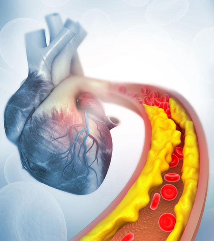 Cholesterol Symptoms and Remedies in Hindi