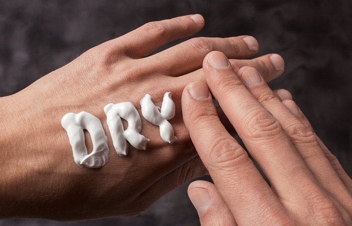 Dry Skin And Dry Hands