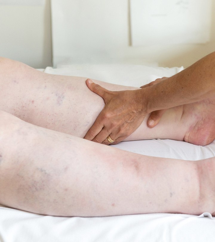 Edema Causes, Symptoms and Home Remedies in Hindi
