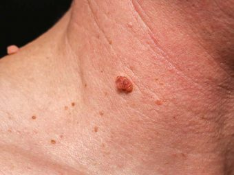Warts Symptoms and Treatment in Hindi