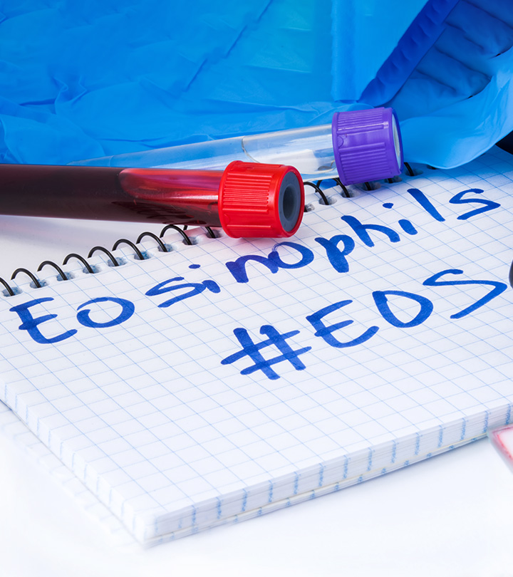 Eosinophilia Causes Symptoms and Treatment in Hindi